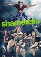 download Shameless US S11E08